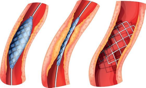 stent åpner blodårer